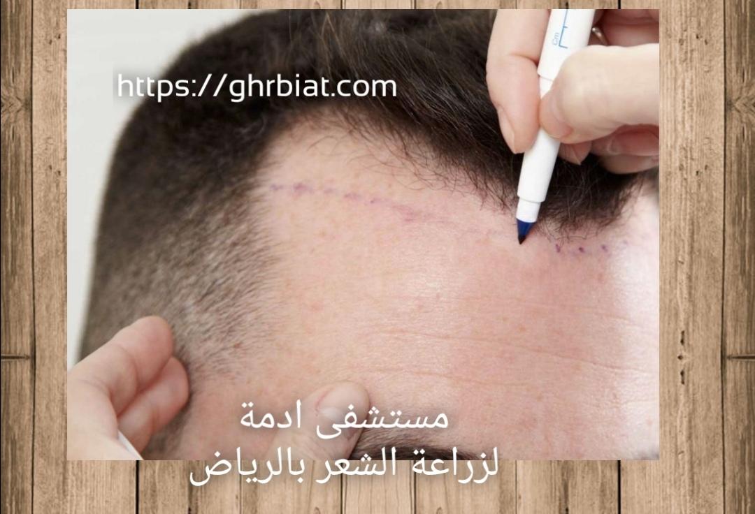 مستشفى ادمة لزراعة الشعر بالرياض