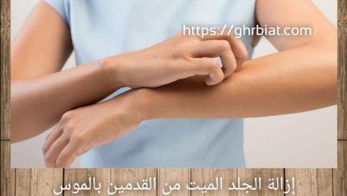 إزالة الجلد الميت من القدمين بالموس