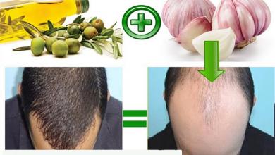 علاج تساقط الشعر بالثوم 1