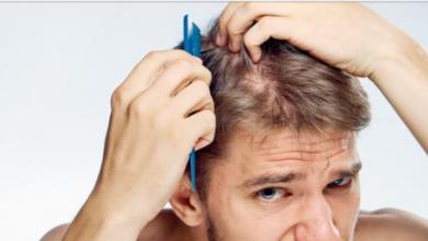علاج تساقط الشعر عند الرجال 1