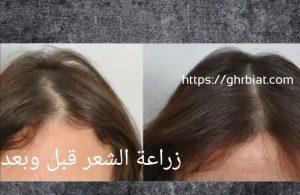 زراعة الشعر قبل وبعد