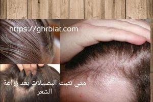 متى تثبت البصيلات بعد زراعة الشعر