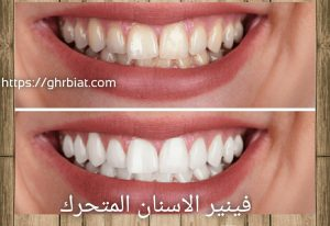 فينير الأسنان المتحرك قبل وبعد،