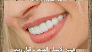 فينير الأسنان المتحرك قبل وبعد