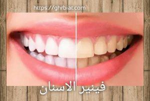 فينير الأسنان المتحرك قبل وبعد.