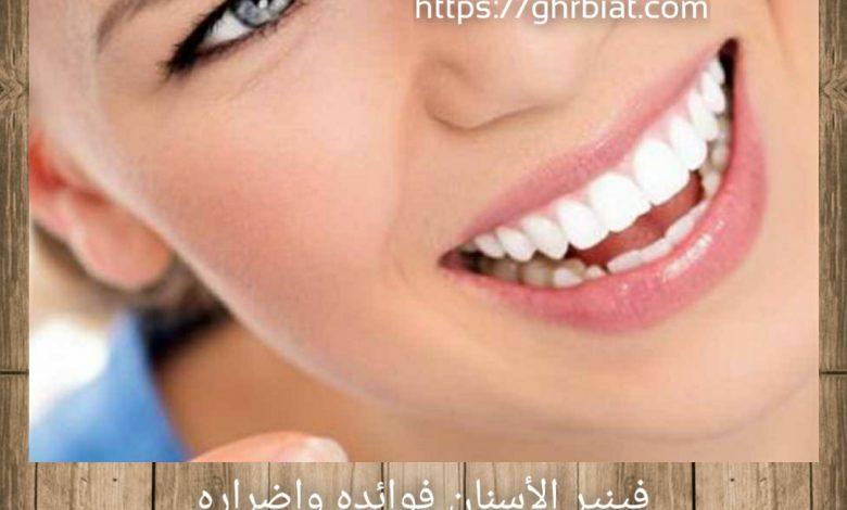 فينير الأسنان فوائده واضراره