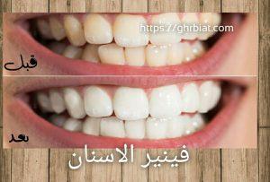 فينير الاسنان المتحرك قبل وبعد
