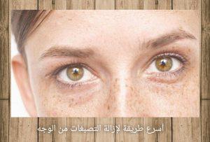 أسرع طريقة لإزالة التصبغات من الوجه