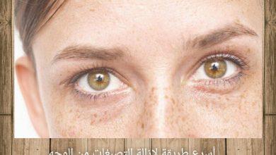 طريقة لإزالة التصبغات من الوجه