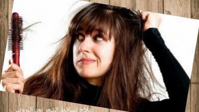 سبب تساقط الشعر بعد البروتين وعلاجه